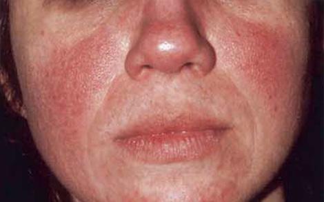 lutter contre l'acné rosacée avec les huiles essentielles bio