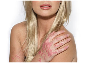 psoriasis-traitement-naturel