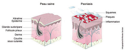 psoriasis_coupe-peau