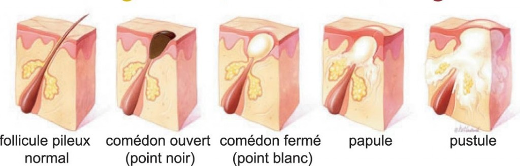differents-stades-et-types-acne