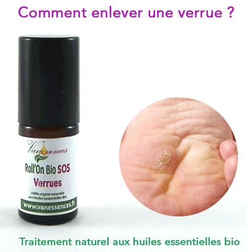 remede verrue plantaire traitement naturel aux huiles essentielles bio