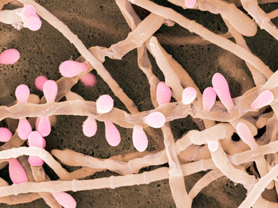 Trichophyton rubrum : traitement naturel d'une mycose au pied ou dermatophytose