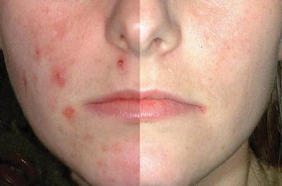 traiter-acne-avec-les-huiles-essentielles-aromatherapie