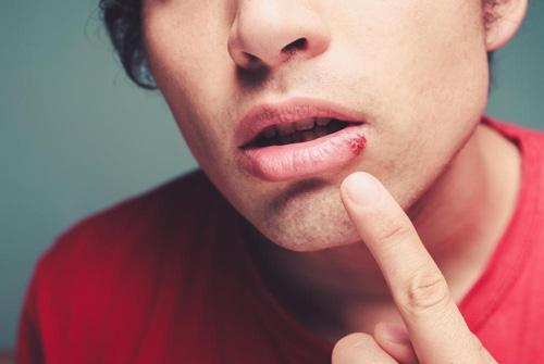 bouton de fièvre herpès labial