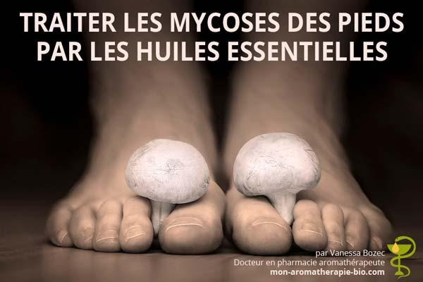Traitement de la mycose des ongles de pieds par les huiles essentielles