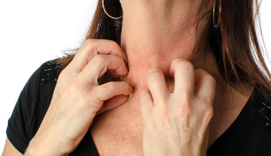 L'eczéma sur le visage, les mains ou le cou peut être psychologiquement difficile à supporter