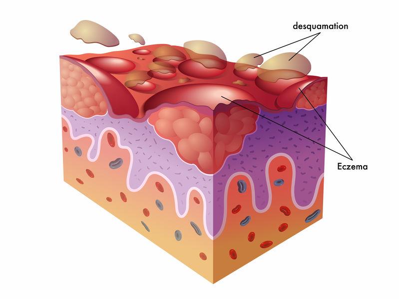eczéma schéma de coupe de peau